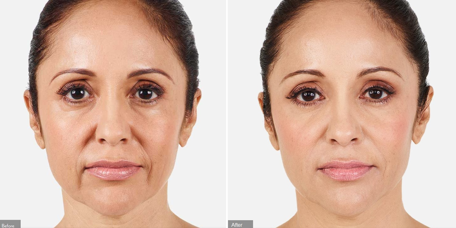 juvederm under eyes before after