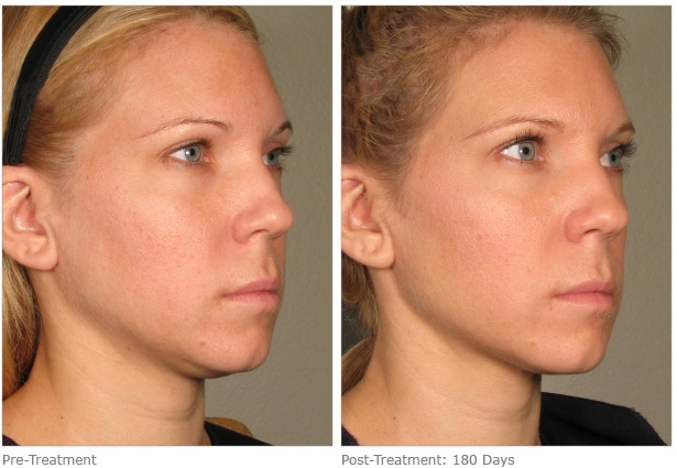 ultherapy-before-after